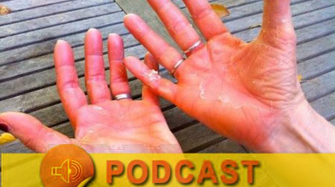 IL MIO MEDICO - Mani-rosse-disturbo