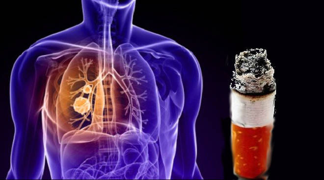 SALUTE - tumore polmone